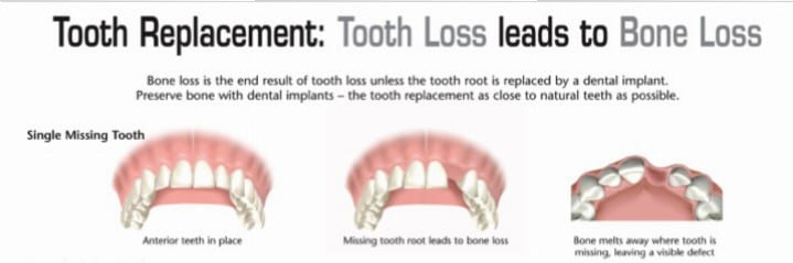 Single Tooth Bone Loss