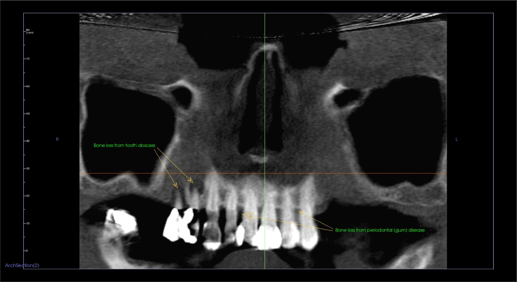 Periodontal (Gum) Disease & Tooth Abscess Leading To Bone Loss