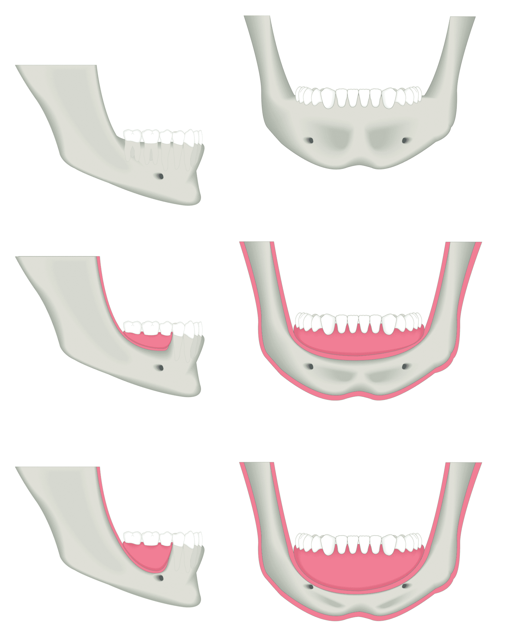 Progressive bone loss with loss of posterior teeth or with loss of all teeth over time.
