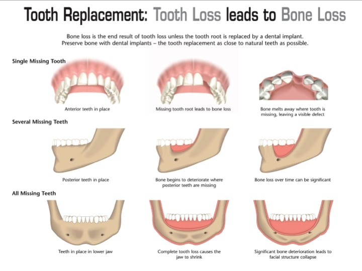 Bone loss after tooth extraction