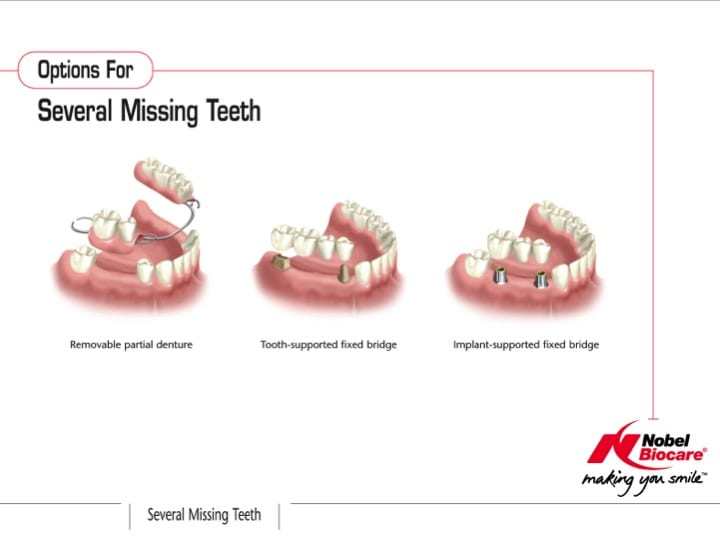 Options For All Missing Teeth