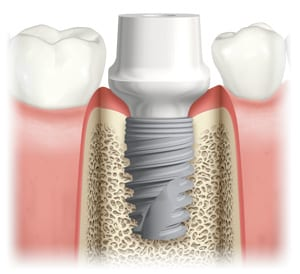 final-abutment-to-support-final-tooth