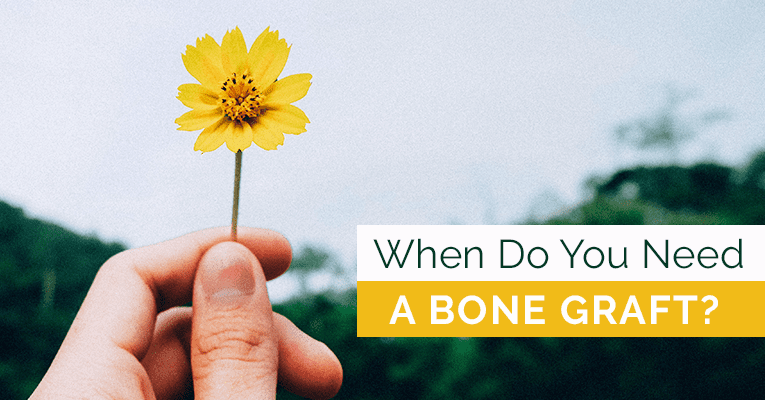 when do you need a bone graft?