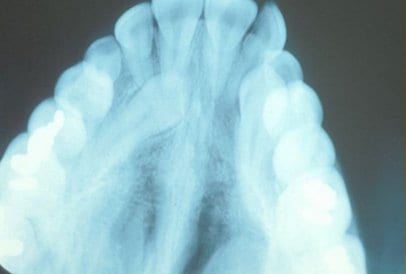 Impacted Canine X-Ray